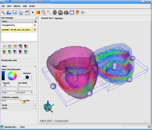 CardioViz3D: screenshot n. 14