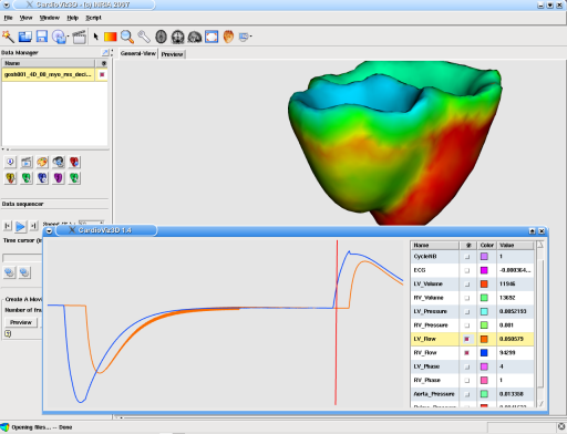 CardioViz3D: screenshot n. 15