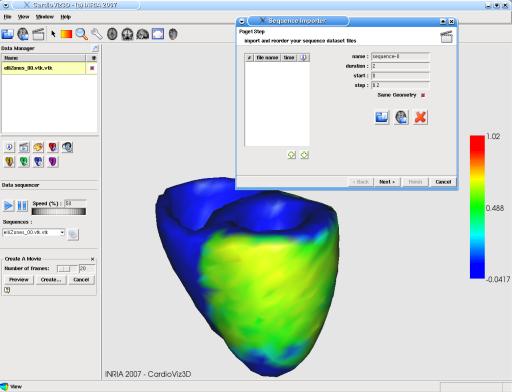 CardioViz3D: screenshot n. 9