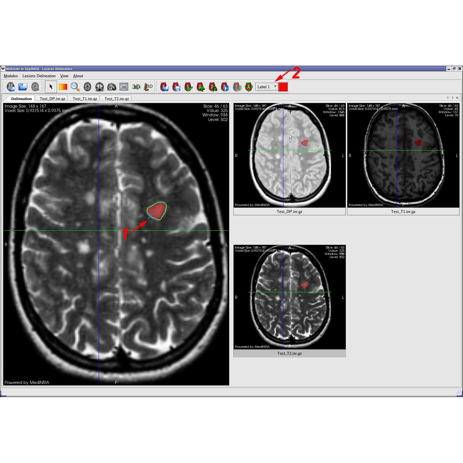 SepINRIA Multiple Sclerosis Software Logiciel Sclérose en Plaques